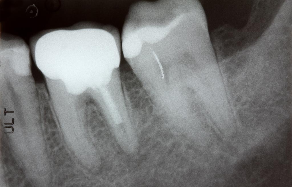 rentgen zobni