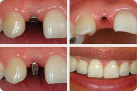 implanti_zobni_vsadki