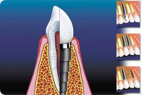 Mini implantati