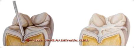 preventiva_kariesa_z_zalivanjem_fisur