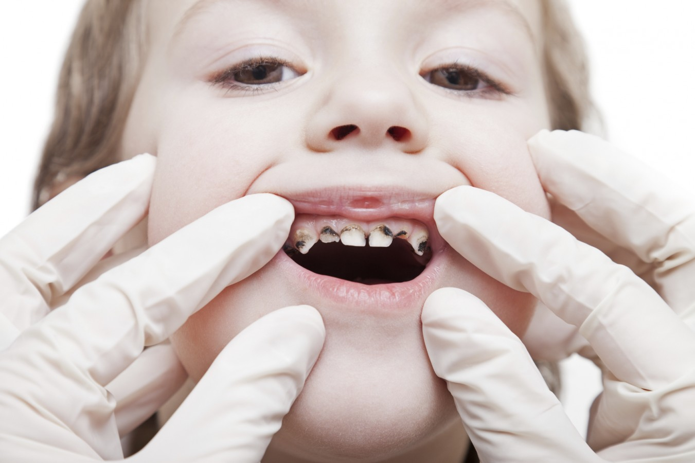 Bolezni mlečnih zobkov